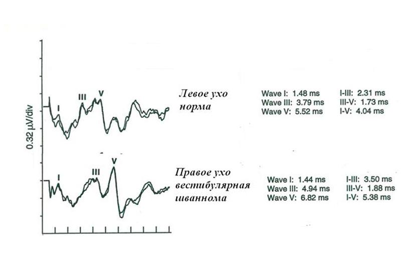 КСВП при правосторонній пухлині правого слухового нерва