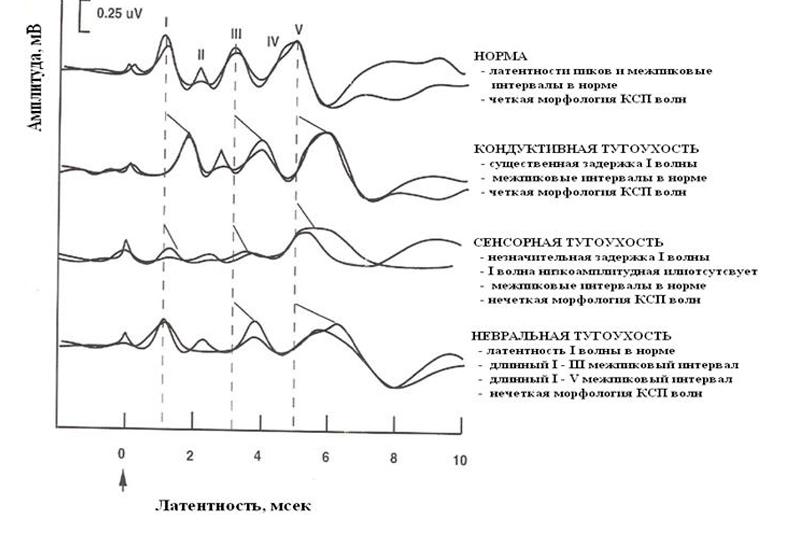 Приклади морфології хвиль КСВП