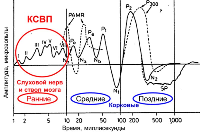 Зображені типові хвилі СВП в дорослої людини