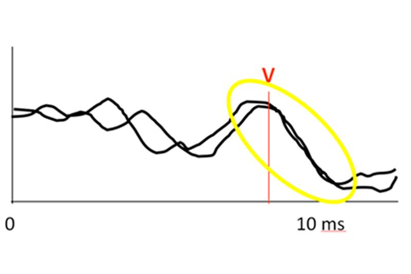 Наявність піку (хвилі) V КСВП свідчить про нормальний слух