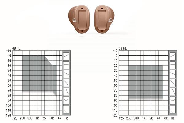Діаіпазон втрати слуху, що компенсується внутрішньоканальними моделями Get